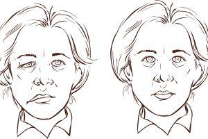 Facial Parese aangezichsverlamming FysioHeuveleind