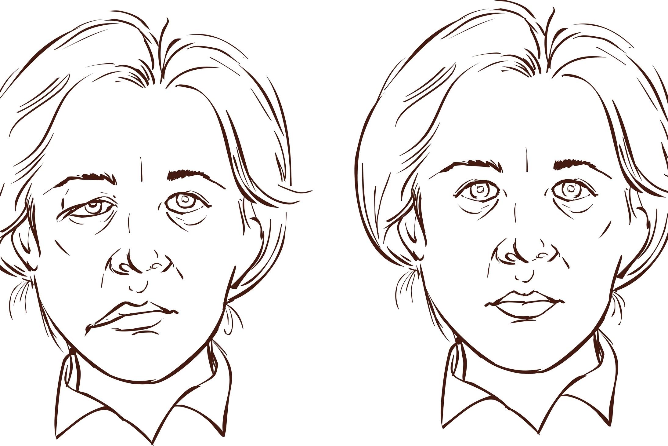 Aangezichtsverlamming Facial Parese